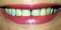 Closeup of woman's unevenly spaced teeth before treatment